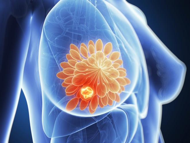 These Lifestyle Choices Lower Your Breast Cancer Risk, Even If You're Genetically Predisposed To It