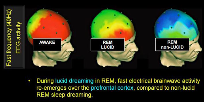 Lucid Dreamers Found To Produce The Fastest Brainwave Frequencies Ever Recorded