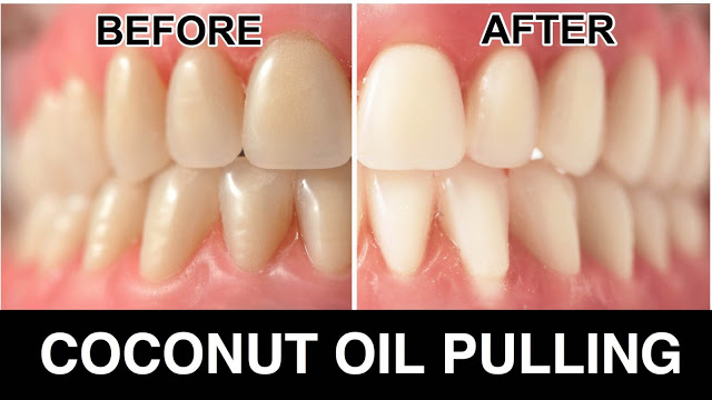 Oil Pulling: Research Finally Reveals What Some Have Known All Along