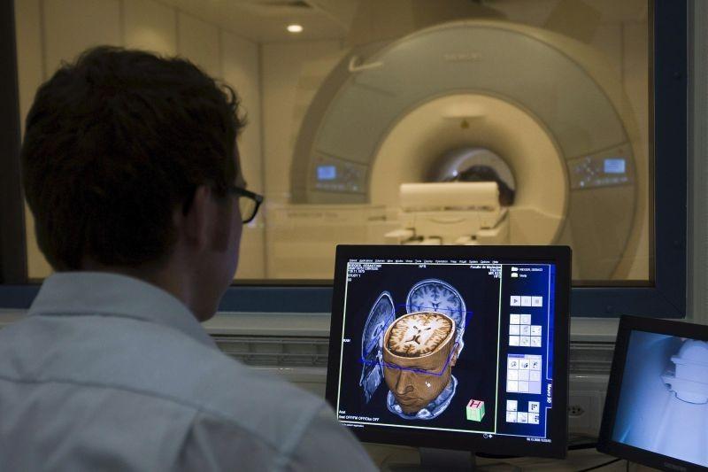CIÊNCIA - Descoberta possível sintoma inicial da doença de Alzheimer