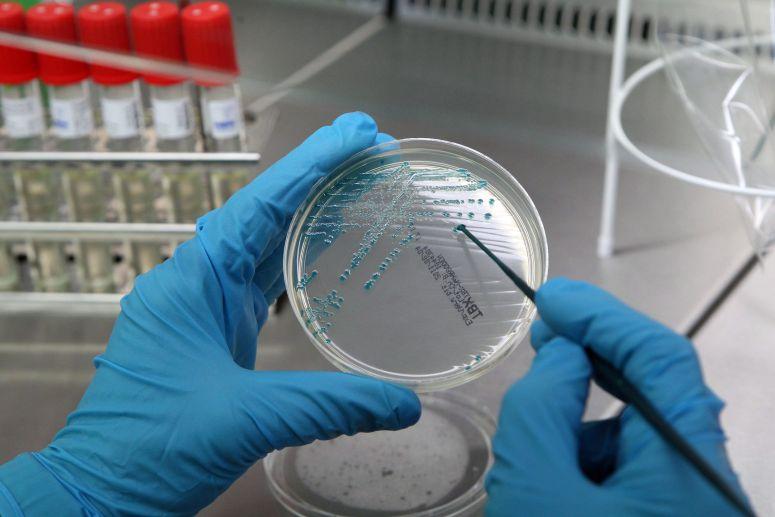 SAÚDE - Bactéria 'E. coli' detectada em suplemento alimentar de canábis à venda em farmácias