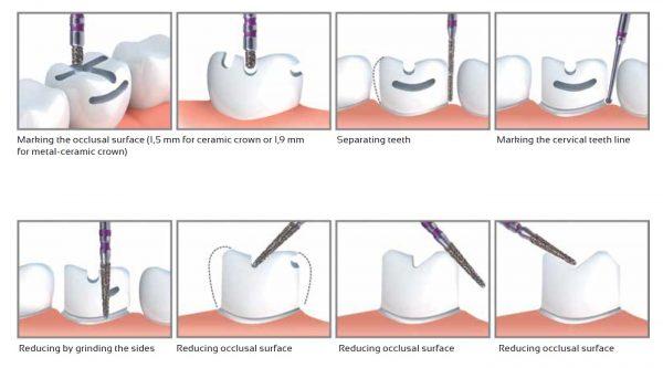 Set freze pentru slefuiri coronare Verdent by Dr. Zavadka