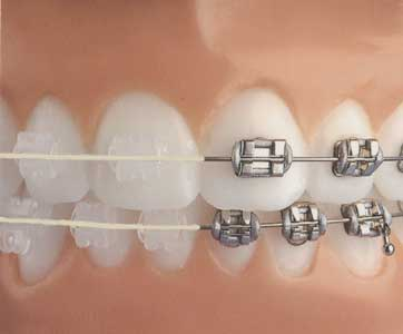 Arcuri ortodontice NiTi rectangular Estetice