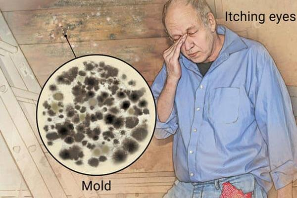 Mold Allergy Symptoms Raleigh Nc