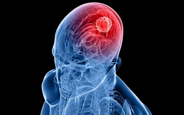 มะเร็งสมอง