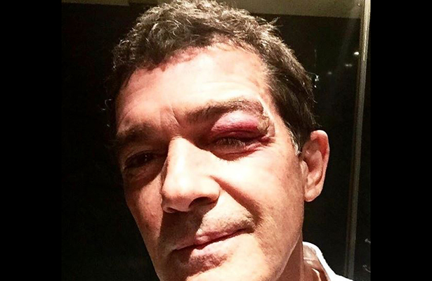 Antonio Banderas sufre aparatoso accidente en set