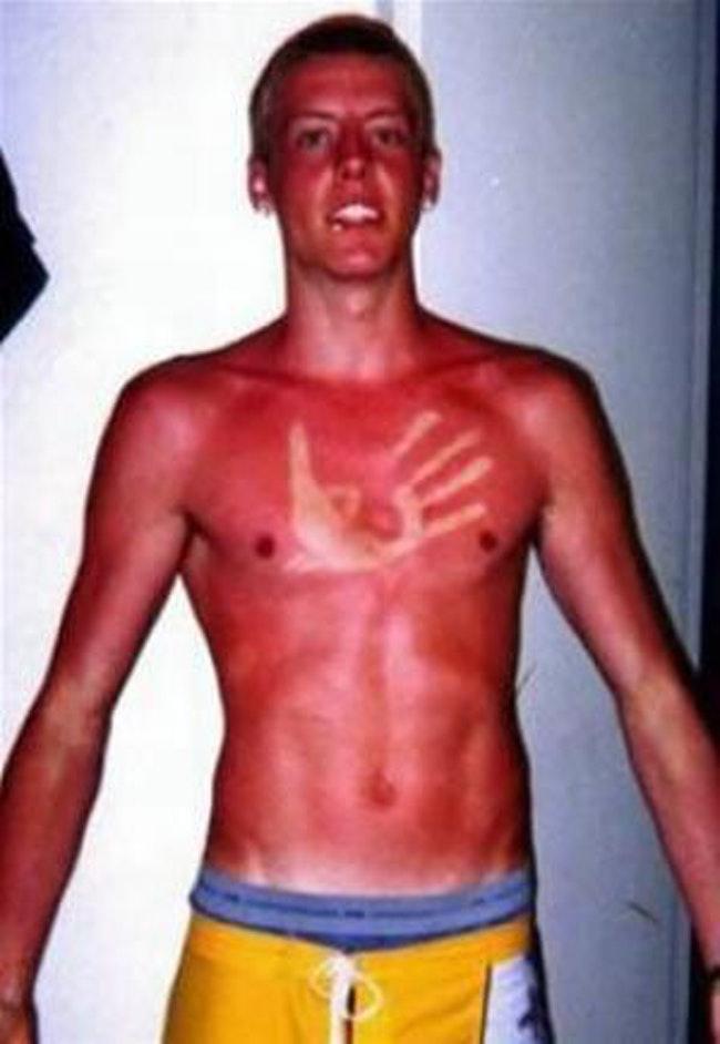 59c857d0cac4f   - Les coups de soleils les plus drôles et douloureux de l'été