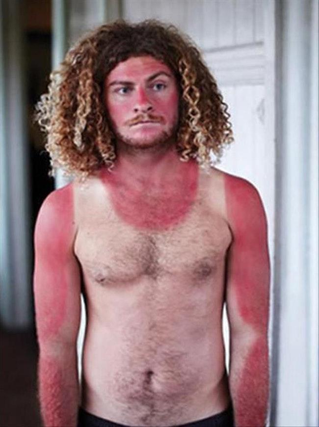59c857e213ee6   - Les coups de soleils les plus drôles et douloureux de l'été
