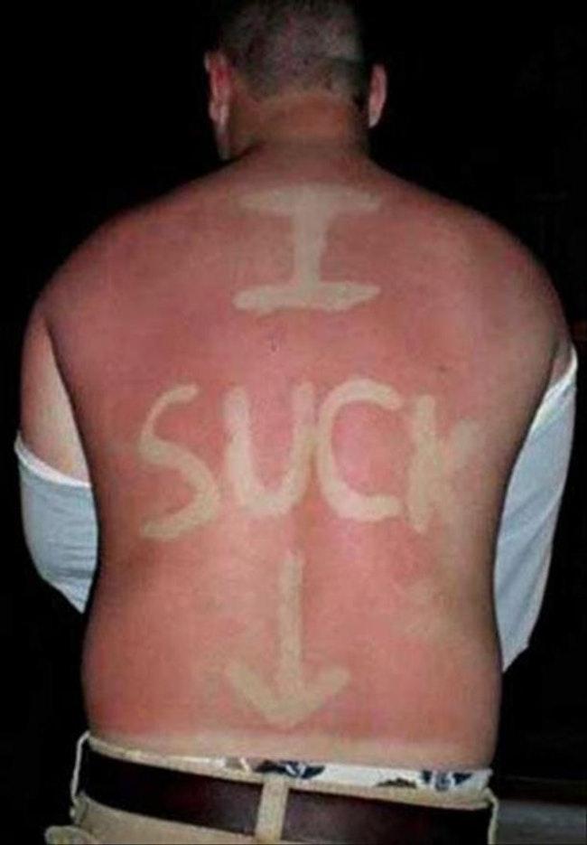 59c857e572a96   - Les coups de soleils les plus drôles et douloureux de l'été