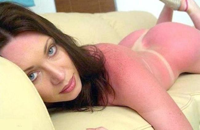 59c857ed3574a   - Les coups de soleils les plus drôles et douloureux de l'été
