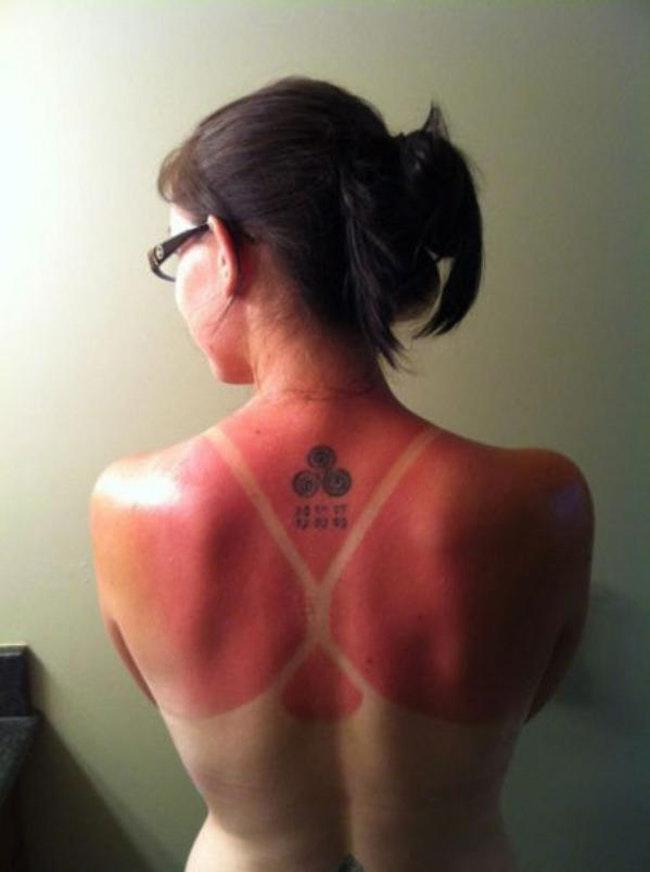59c857f35f579   - Les coups de soleils les plus drôles et douloureux de l'été