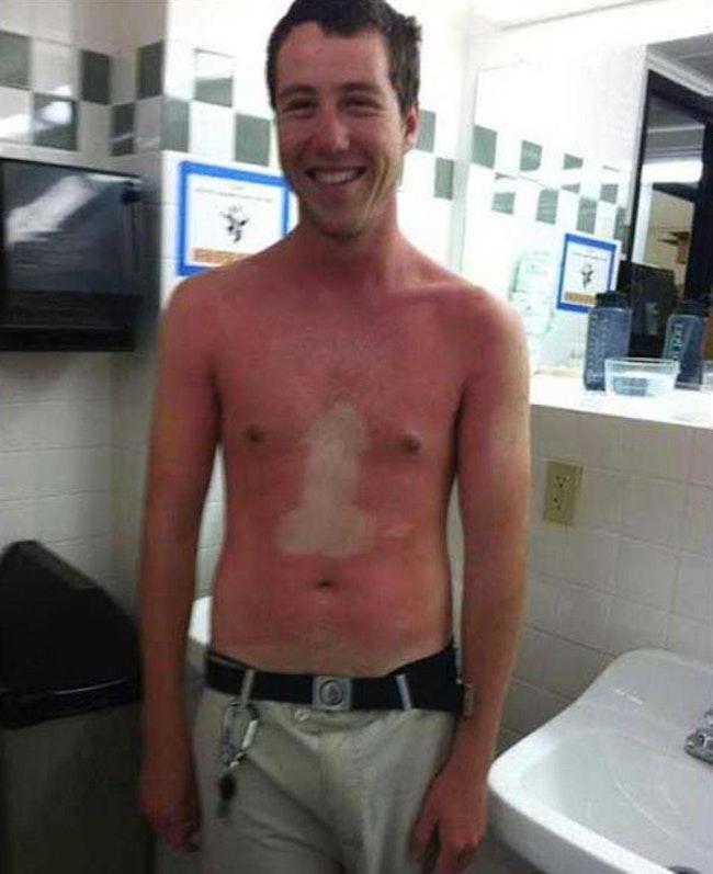 59c857f8b7831   - Les coups de soleils les plus drôles et douloureux de l'été