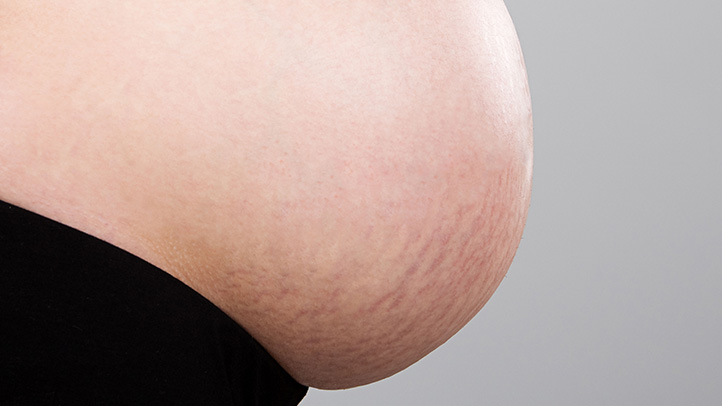 Stretch Marks During Pregnancy 722x406 - Did You Know You Could Use VapoRub For Earaches - And More?