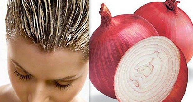 remede naturel anti chute de cheveux - Les 10 utilisations insoupçonnées de l'oignon