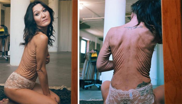 2 24 - 헐렁한 옷으로 피부를 감추고 다니던 그녀의 용기있는 외침!