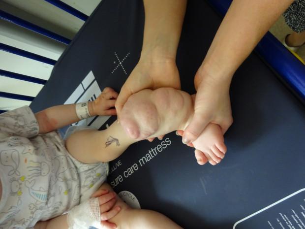 201707231455065748 img 0 - 왼쪽 다리를 '절단'한 갓난아기... 의사의 태도에 '분노' (영상)