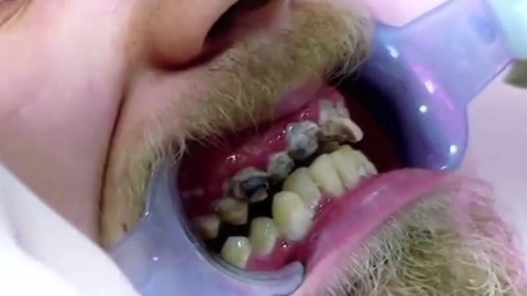 3 18 - 20年間に一度も歯磨きをしなかった男性の結末