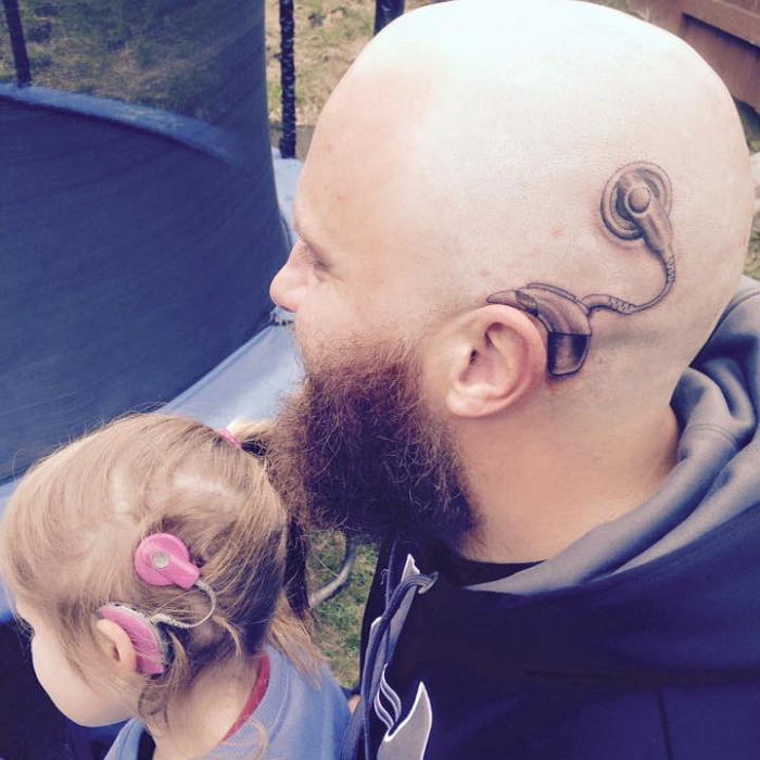 art150807105940 - 뇌종양 수술 후 커다란 흉터...아들 위해 '흉터 문신' 새긴 아빠