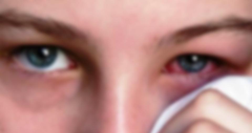 belly 2473 960 720 10 - 67세 할머니의 눈에서 발견된 의문의 이물질...'경악!'