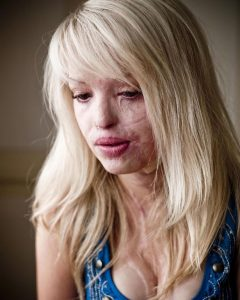 katie piper1 240x300 - 10 Years Ago, They Were A Happy Couple. Now, She Reveals The Sick Truth And Warns The World.