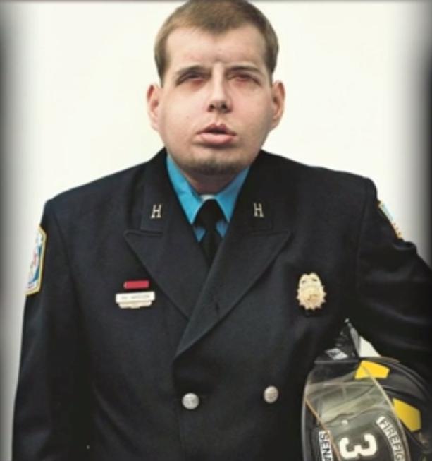ntd patrick hardison fireman after surgery 8 - 여성을 구하려다 '얼굴'을 잃은 소방관... 새 얼굴을 선물받다 (영상)