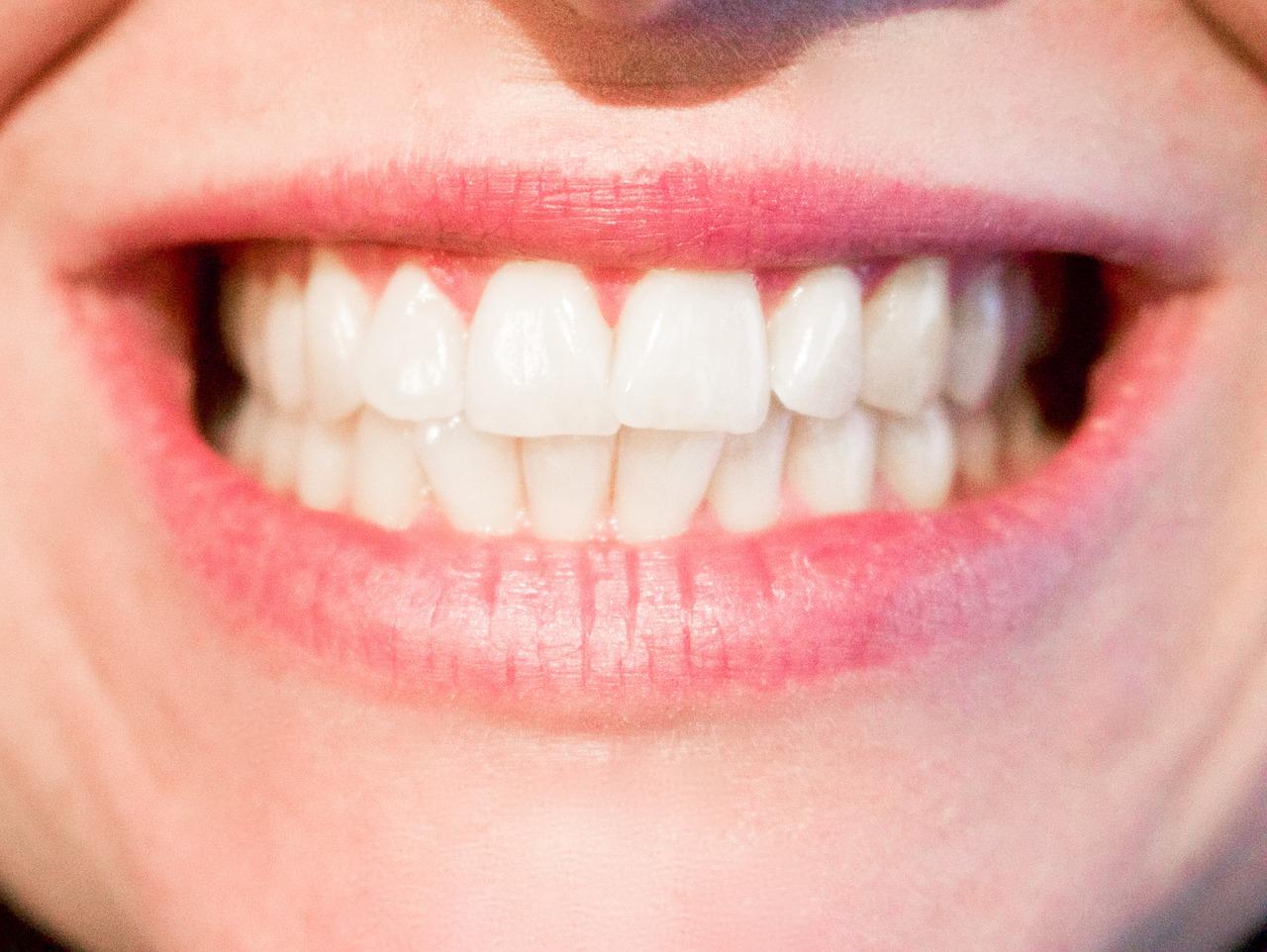 teeth 1652976 1280 - 【エロ情報】 実は外見だけでわかる!その女性が「名器」かどうかが分かる方法7選