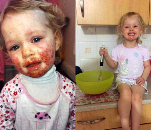 080201 - 8개월 동안 아기 얼굴에 '피고름' 나게 한 원인 알고보니... '충격' (사진)