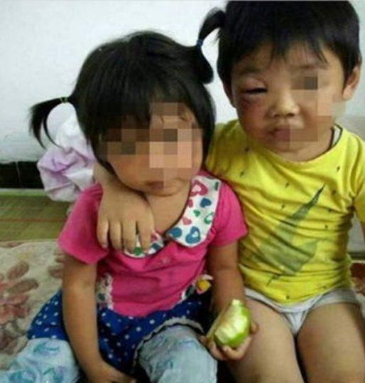1 23 - '집 나간 아내' 돌아오게 하려고… 아이들 '학대' 사진 올려 협박한 남성