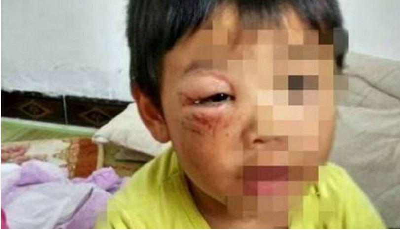111111 - '집 나간 아내' 돌아오게 하려고… 아이들 '학대' 사진 올려 협박한 남성