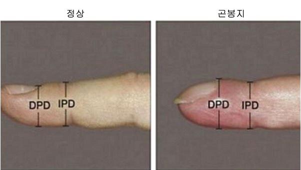 1708260301 1 1 - 손톱이 '굽은 모양'을 하고 있다면 '이 질환'을 의심해 봐야…