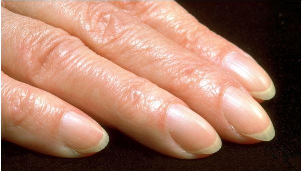 1708260304 - 손톱이 '굽은 모양'을 하고 있다면 '이 질환'을 의심해 봐야…