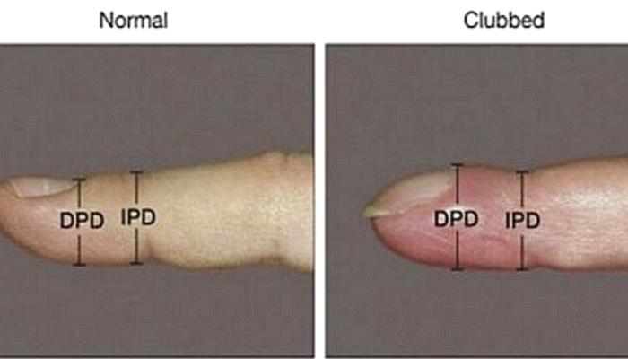 4mlvpw169556a7124gh4 - 「爪」が曲がっていたら「この病気」になっているかもしれない