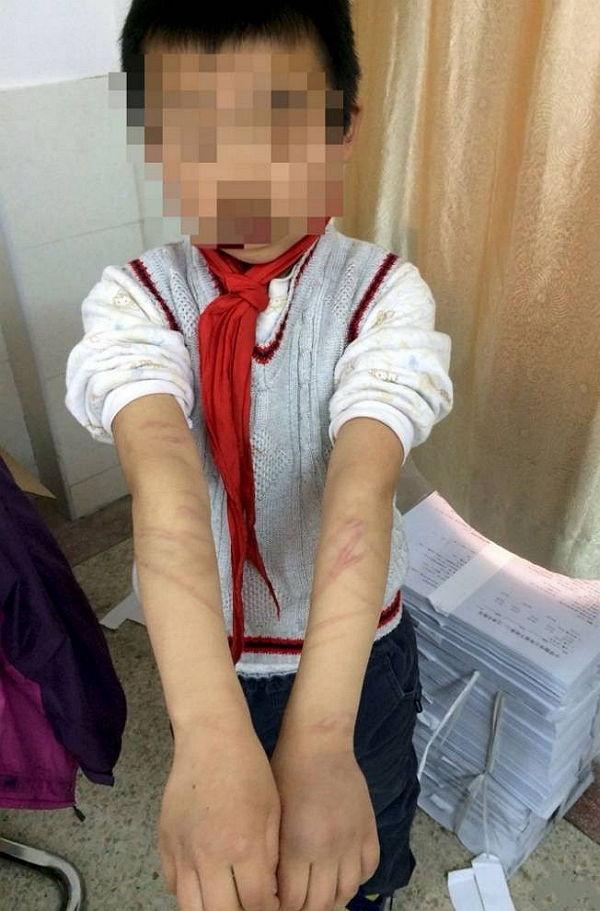 """art150408114738 - """"비정한 양부모""""...숙제 안했다고 9살 소년을 '채찍'으로 때리고 '펜'으로 찌르기까지"""