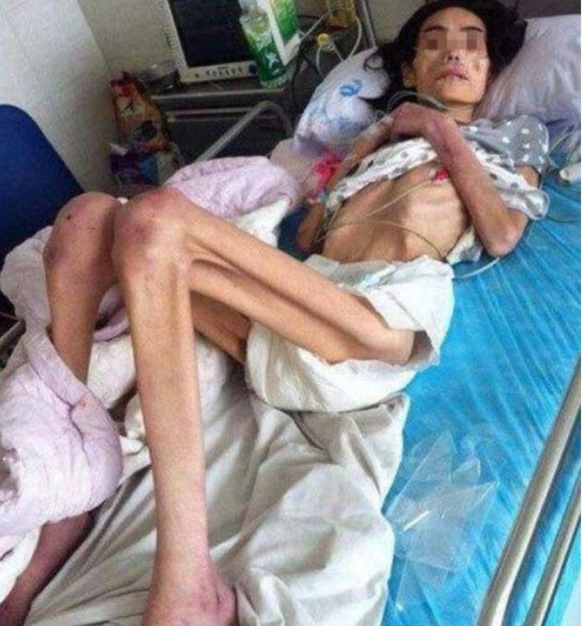 ec9584eb82b4 5 - 시어머니의 학대로 체중 '18kg'의 반신불수가 된 여성...'경악'