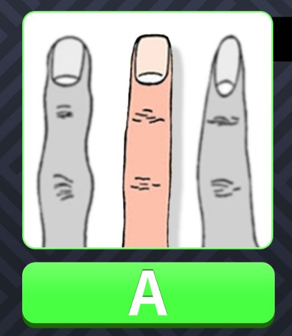 img 59a53b5a124e9 - [性格診断] 人差し指を見てください!指の形で調べる性格テスト!