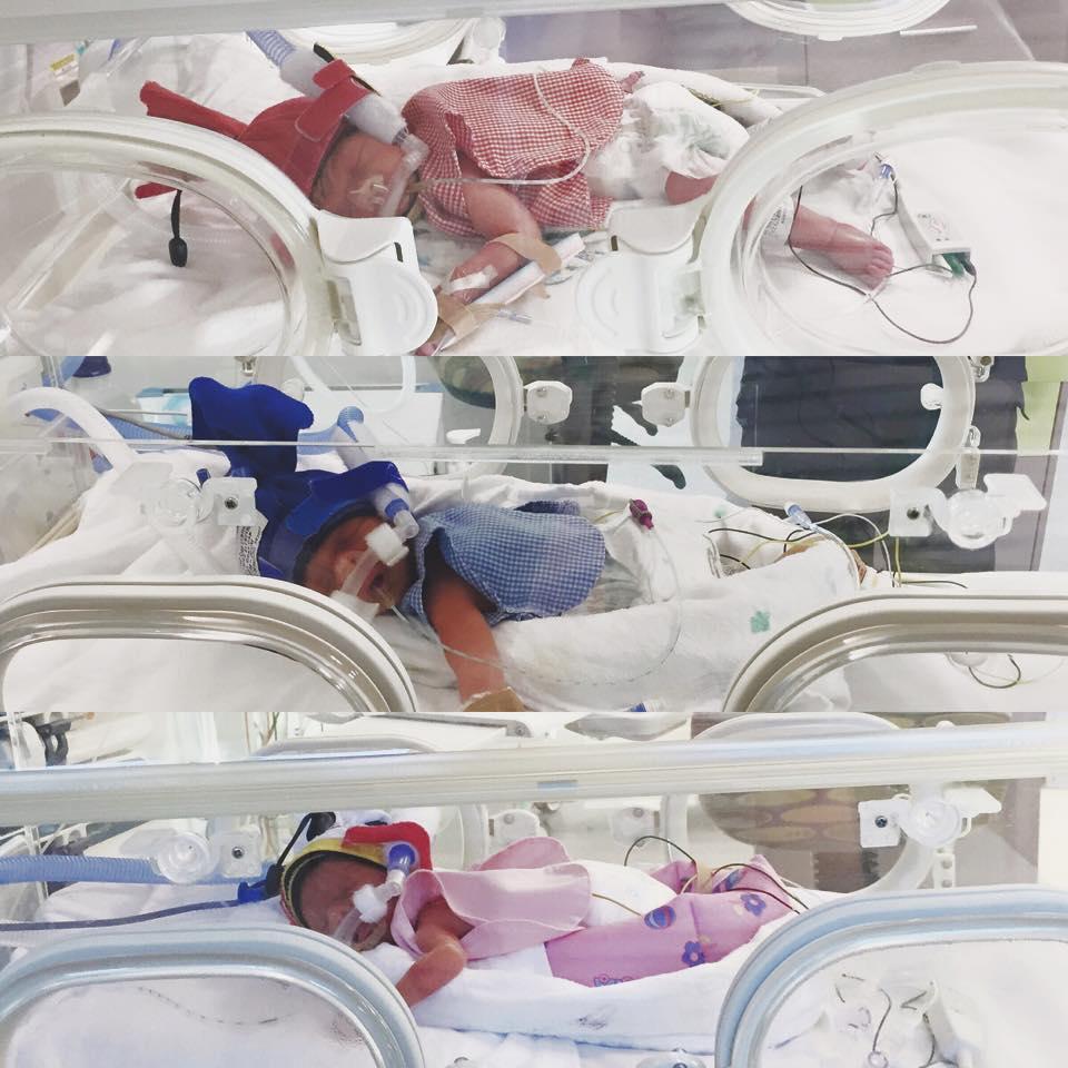 ntd chloe triplet06 - 낙태 권유에도 끝까지 포기하지 않은 '세쌍둥이' 엄마