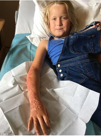 1505399968621 - 驚恐!7歲女童到印度旅遊體驗「漢娜手繪」,整隻手竟爛掉!復原後超恐怖....