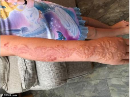 1505400037732 - 驚恐!7歲女童到印度旅遊體驗「漢娜手繪」,整隻手竟爛掉!復原後超恐怖....
