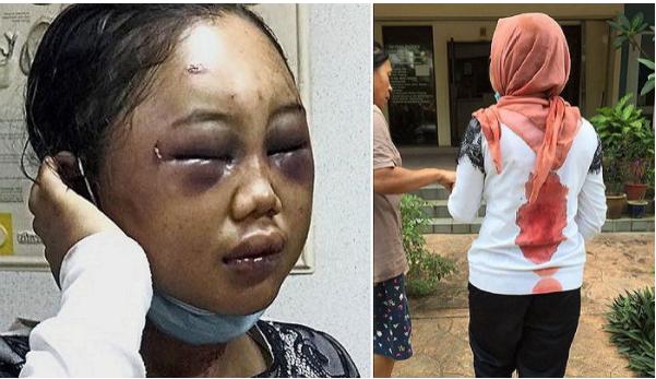 """1709030701 - """"물 아까워, 씻지마!"""" 가정부로 일하는 19살 소녀 감금 폭행한 집주인"""