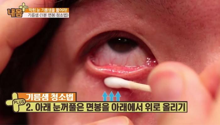 74m0dji4w68vvz669v3b - 렌즈 착용자라면 '필수'! 꿀팁 '눈 기름짜기'