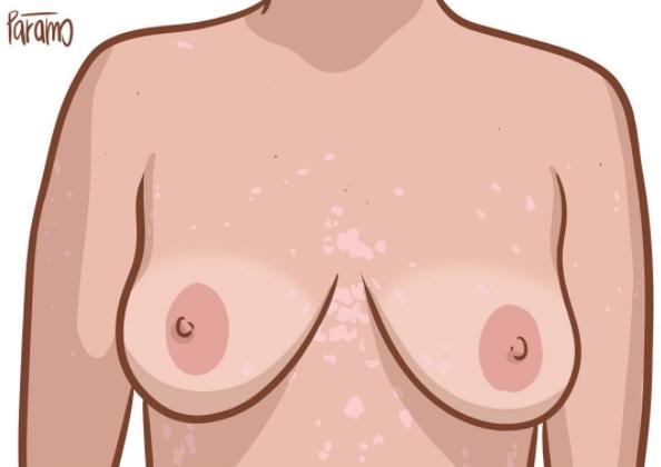 pm1 - 自分の体が大きらい?ありのままの自分を受け入れるイラスト