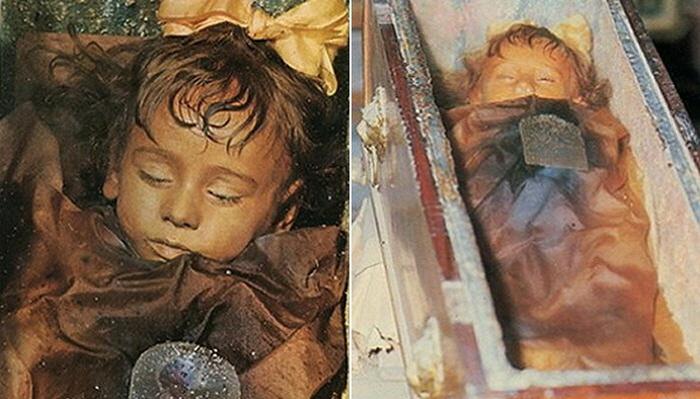 1 452 - 100년 전 잠들었던 아이가 갑자기 눈을 깜빡였다 (사진 4장)