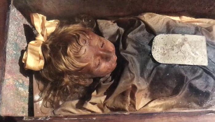 2 417 - 100년 전 잠들었던 아이가 갑자기 눈을 깜빡였다 (사진 4장)