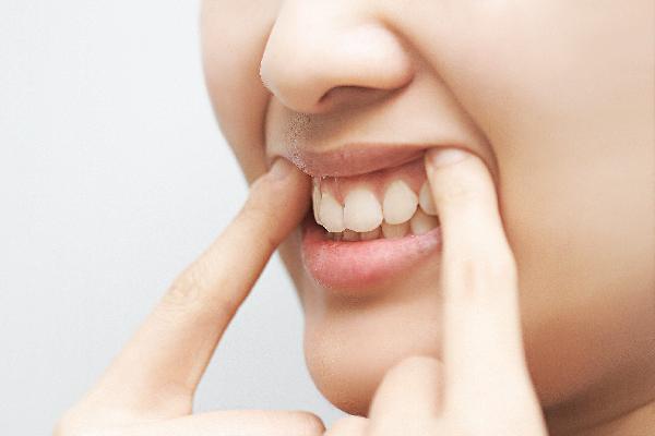 2017032301573 0 - 얼굴에 드러나는 비타민 결핍 증세 7가지