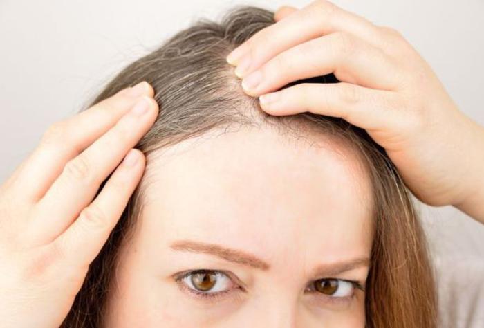 20170822 181741 - 머리카락으로 알아보는 건강 상태 6가지