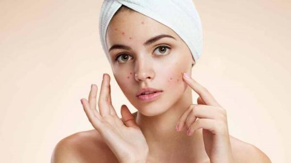 44 2 - 얼굴에 드러나는 비타민 결핍 증세 7가지