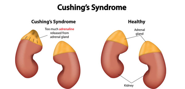 cushings disease symptoms treatment and causes Cushing's disease in dogs: symptoms, diagnosis and treatments as far as treatments for cushing's disease in dogs, the first option is usually surgery this disease confuses the body, and causes it to shoot too much of the cortisol hormone into.
