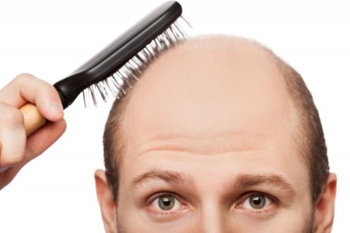 hair loss cause - 머리카락으로 알아보는 건강 상태 6가지