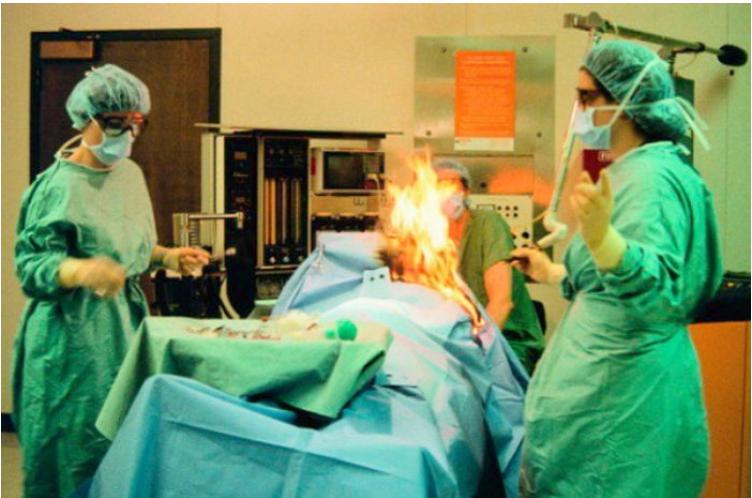 img 5a1eb939695f7 - 수술 중 몸에 '불' 붙은 여성…놀랍게도 그 이유는 그녀의 '방귀'