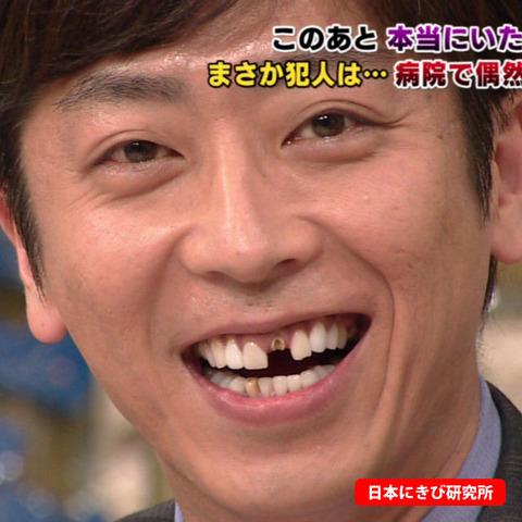 1 361 - もとは歯並び最悪?差し歯をしている芸能人